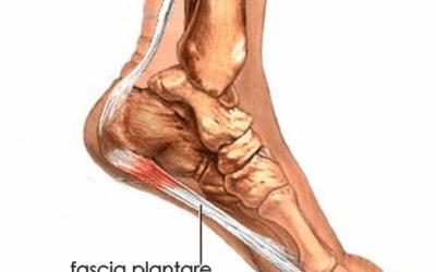 Il dolore della pianta del piede, quando si tratta di fascite plantare.