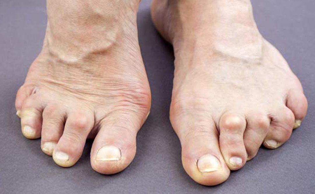 Il piede reumatico