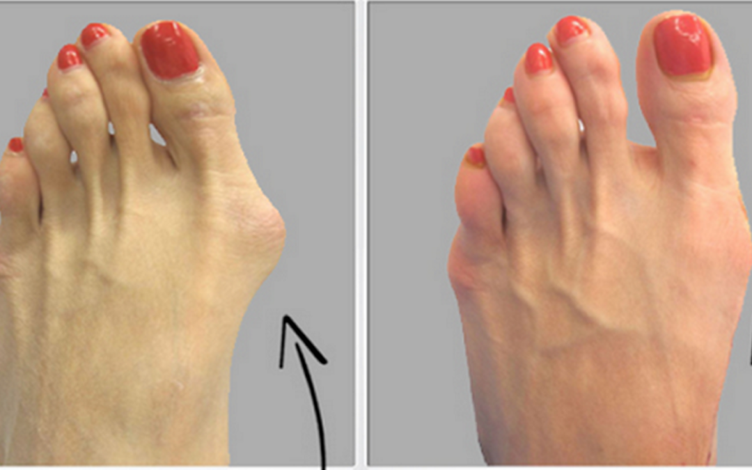 Turismo sanitario e chirurgia del piede, in Spagna per operarsi senza attese e con tecniche all'avanguardia.